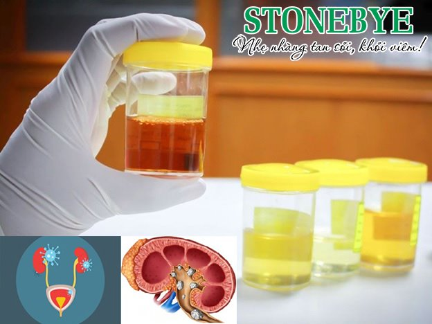 Sỏi tiết niệu và viêm tiết niệu thường gây tiểu ra máu ở phụ nữ